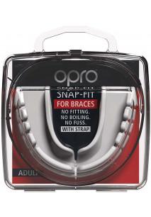 Snap Fit Braces mouthguard
